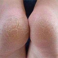 Vết chai chân có thể là dấu hiệu của một căn bệnh cực kỳ nguy hiểm