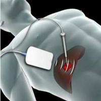 Lần đầu cắt u gan không cần mở ổ bụng