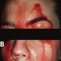 Chứng bệnh hiếm có kỳ lạ khiến cô gái này đổ máu thay mồ hôi