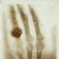 Tấm ảnh X-quang đầu tiên đã khiến vợnhà phát minh ra nó phải giật mình