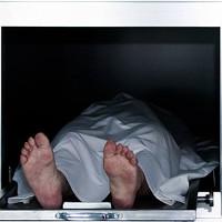 Hội chứng khiến các bác sĩ suýt khám nghiệm tử thi người sống