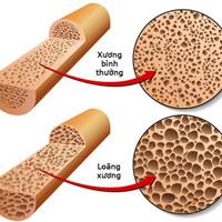 Bác sĩ chuyên khoa đưa ra lời khuyên để giữ cho xương của bạn khỏe mạnh và phòng ngừa loãng xương