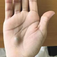 Phát hiện cục bướu lạ ở tay, người đàn ông suýt tử vong vì chứng bệnh nguy hiểm