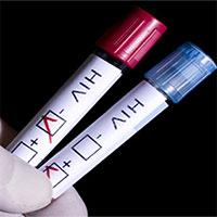 Kinh nghiệm đi làm xét nghiệm HIV bạn cần biết