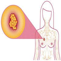 4 hành động hàng ngày dưới đây giúp giảm nguy cơ ung thư vú