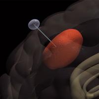 Đột phá thiết bị 'nhử' tế bào ung thư khỏi não bộ