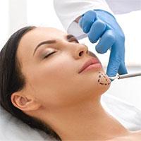 Kỹ thuật y tế mới giúp thay đổi khuôn mặt mà không cần phải phẫu thuật xâm lấn