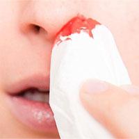 Nước mũi có máu, nguyên nhân do đâu?
