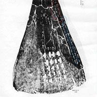 Người Trung Quốc cổ đại am hiểu về dịch bệnh từ cách đây 3.000 năm