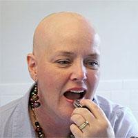 Ung thư lưỡi: Nguyên nhân, triệu chứng và cách điều trị