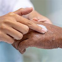 Những bệnh về da vào mùa lạnh dễ tái phát
