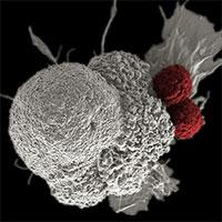 """Tin vui: Tìm ra chất làm thuốc trị ung thư mới khiến tế bào ung thư """"chết đói"""""""