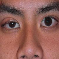 Căn bệnh chết người sau hiện tượng sụp mí mắt