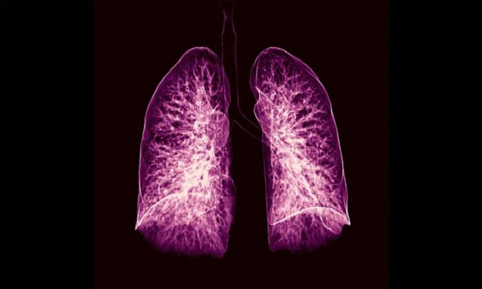 Ảnh chụp cắt lớp lá phổi.