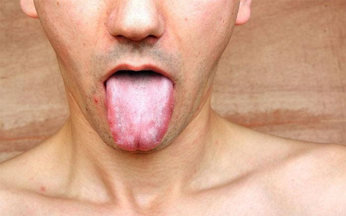 Giang mai có thể biểu hiện ở vùng miệng.