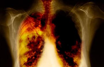 Tầm soát bệnh ung thư phổi ở giai đoạn đầu